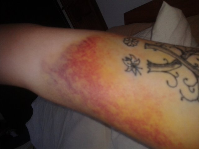 Preloved npr trading standards discussion uk for Blood poisoning tattoo